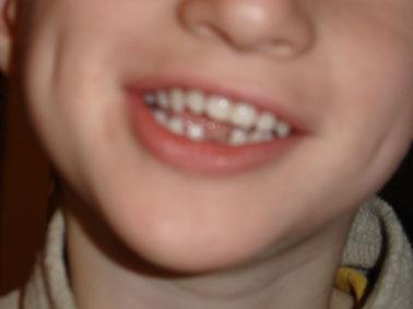 Une dent en moins !