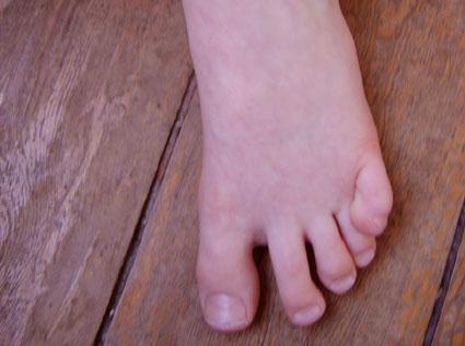 l'orteil de Lou